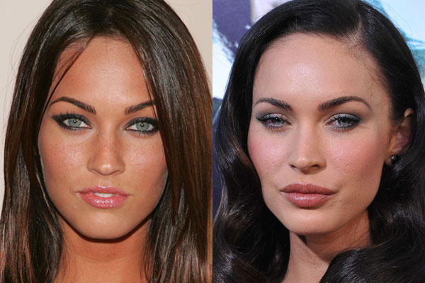 5 A-Listers that got botox (and are all the better for it)